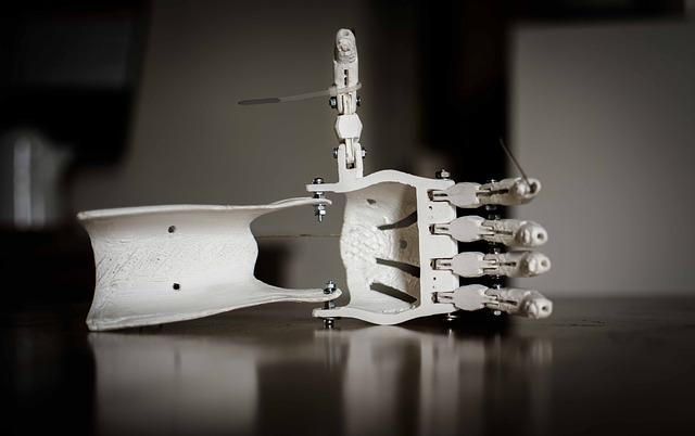 Pomoc w zakupie protezy